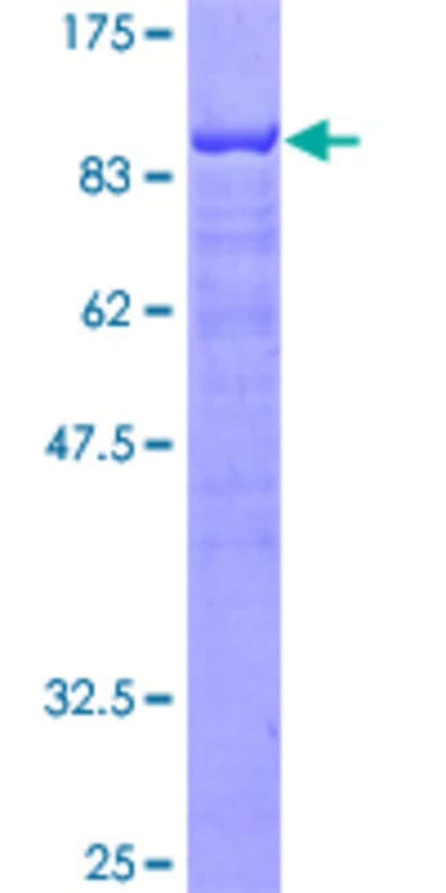 Abnova™ Human LCP2 Full-length ORF (AAH16618, 1 a.a. - 533 a.a.) Recombinant Protein with GST-tag at N-terminal 25μg Abnova™ Human LCP2 Full-length ORF (AAH16618, 1 a.a. - 533 a.a.) Recombinant Protein with GST-tag at N-terminal