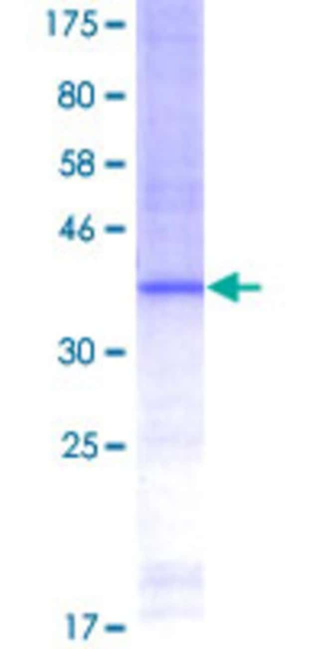 Abnova Human LCT Partial ORF (NP_002290, 32 a.a. - 129 a.a.) Recombinant