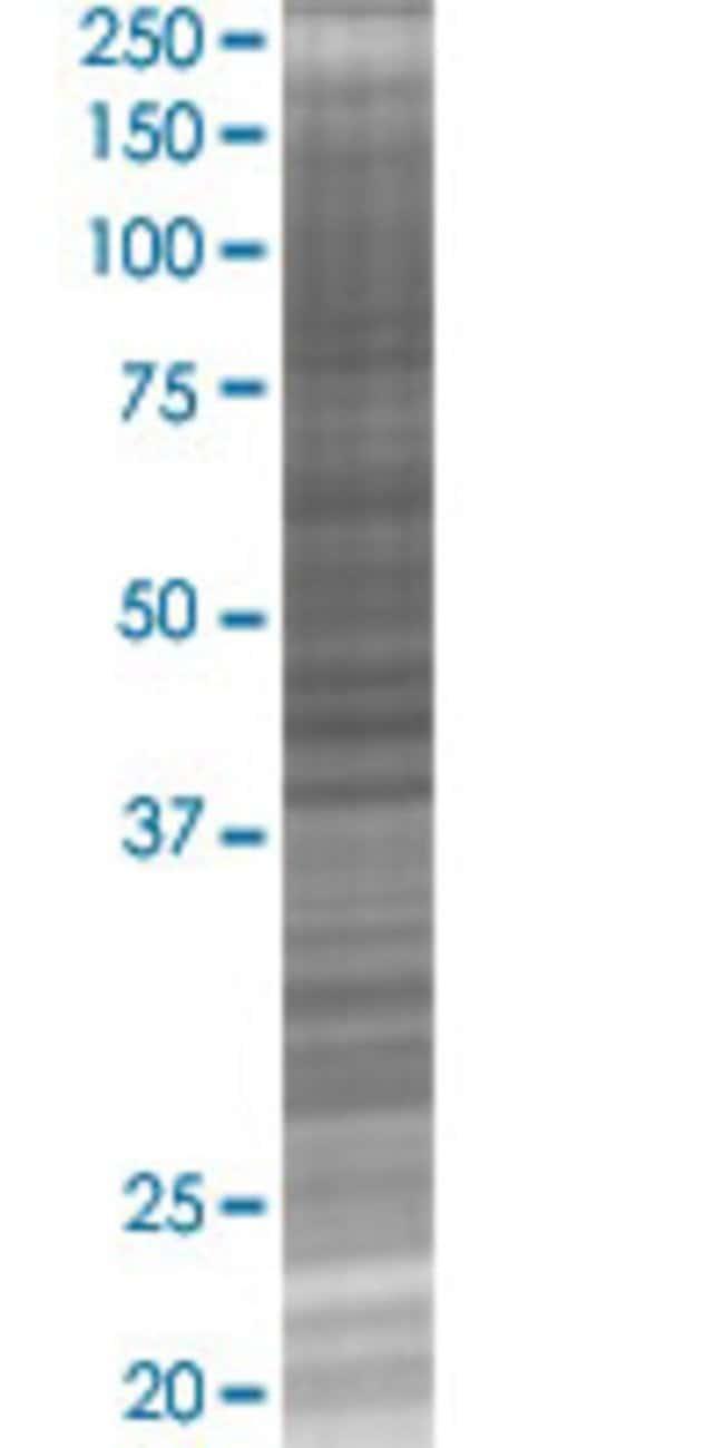 Abnova LDHC 293T Cell Transient Overexpression Lysate (Denatured) (T02)