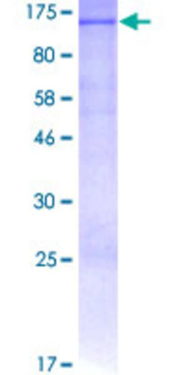 Abnova Human LDLR Full-length ORF (AAH14514.1, 1 a.a. - 860 a.a.) Recombinant