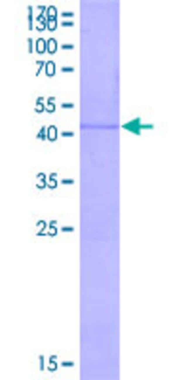 Abnova Human LECT2 Full-length ORF (BAG36787.1, 1 a.a. - 151 a.a.) Recombinant