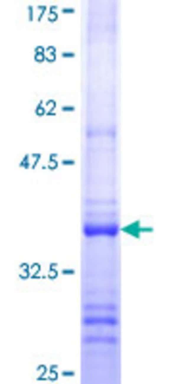 Abnova Human LEPR Partial ORF (NP_001003679, 31 a.a. - 130 a.a.) Recombinant