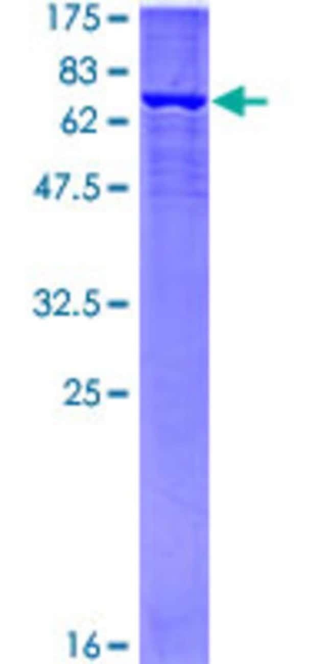 Abnova Human LGALS4 Partial ORF (NP_006140, 51 a.a. - 150 a.a.) Recombinant