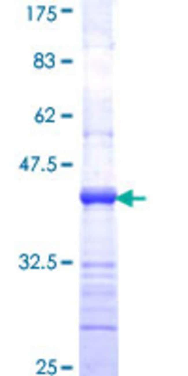 Abnova Human LIFR Partial ORF (NP_002301, 45 a.a. - 154 a.a.) Recombinant