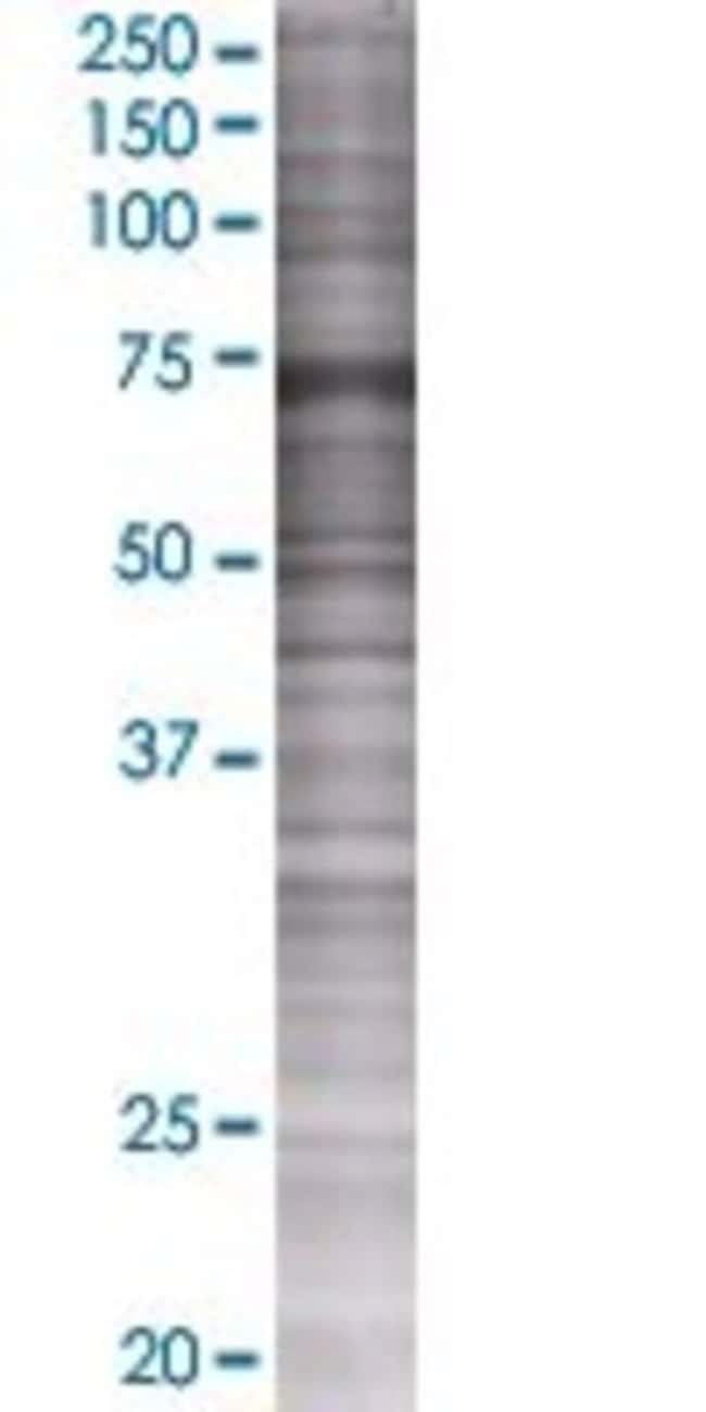 Abnova LIMK1 293T Cell Transient Overexpression Lysate (Denatured) 100µL:Life