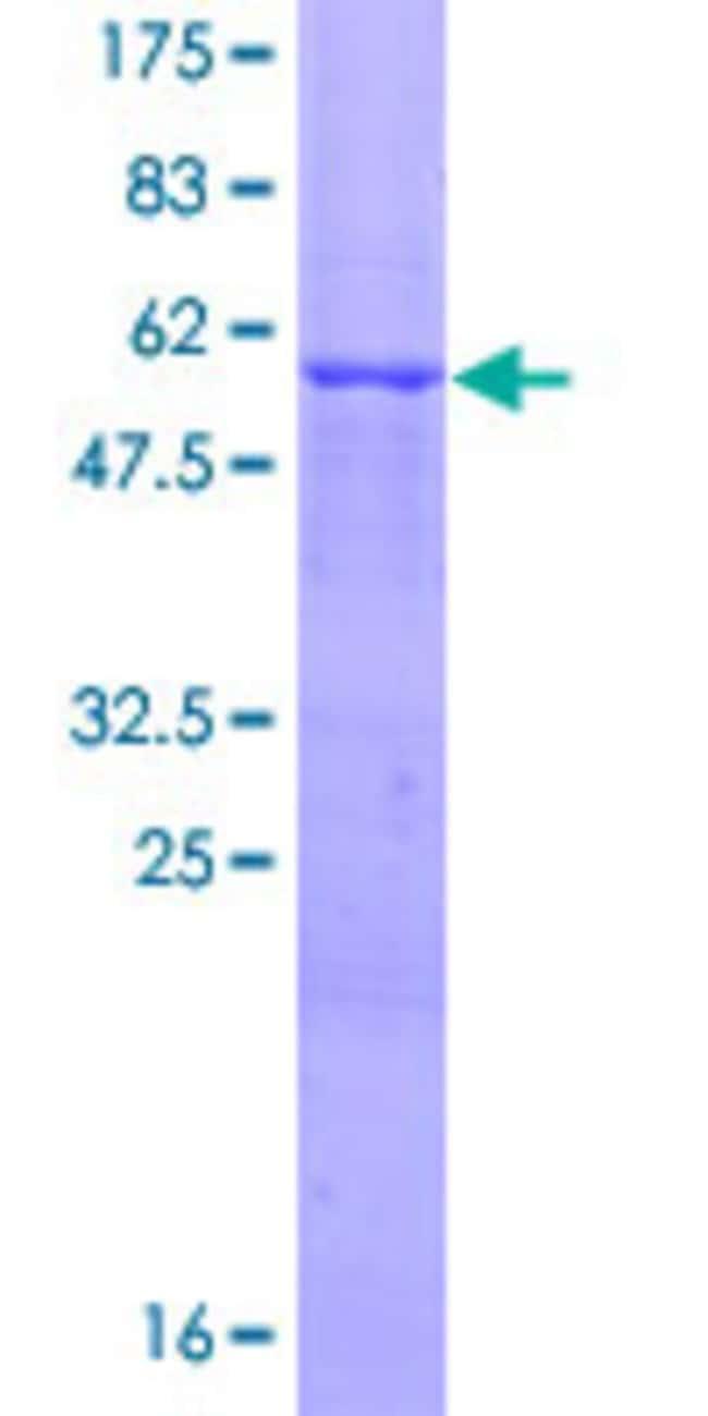 Abnova Human LIMS1 Full-length ORF (NP_004978.2, 1 a.a. - 325 a.a.) Recombinant