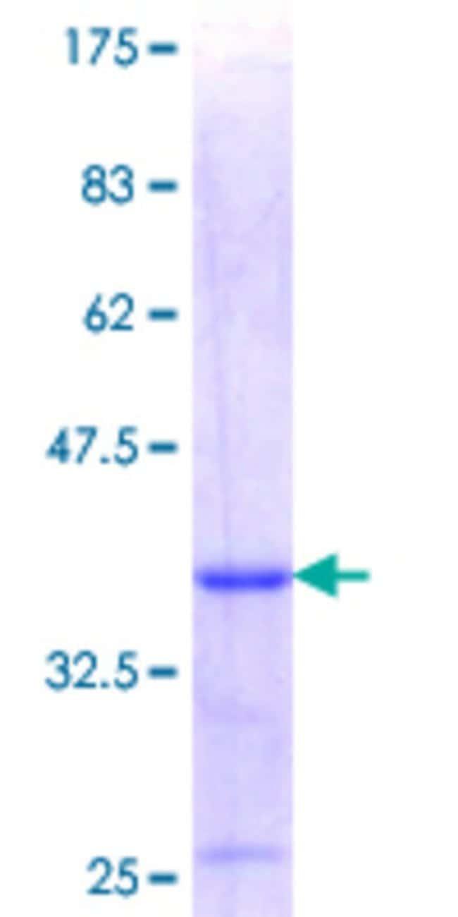 Abnova Human LIMS1 Partial ORF (NP_004978.2, 226 a.a. - 325 a.a.) Recombinant