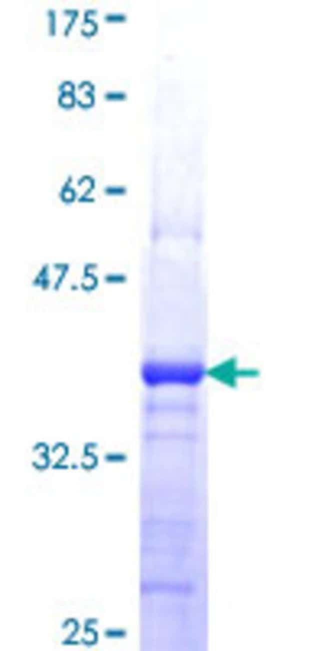 Abnova™Human LLGL2 Partial ORF (NP_004515, 101 a.a. - 199 a.a.) Recombinant Protein with GST-tag at N-terminal 25μg Abnova™Human LLGL2 Partial ORF (NP_004515, 101 a.a. - 199 a.a.) Recombinant Protein with GST-tag at N-terminal