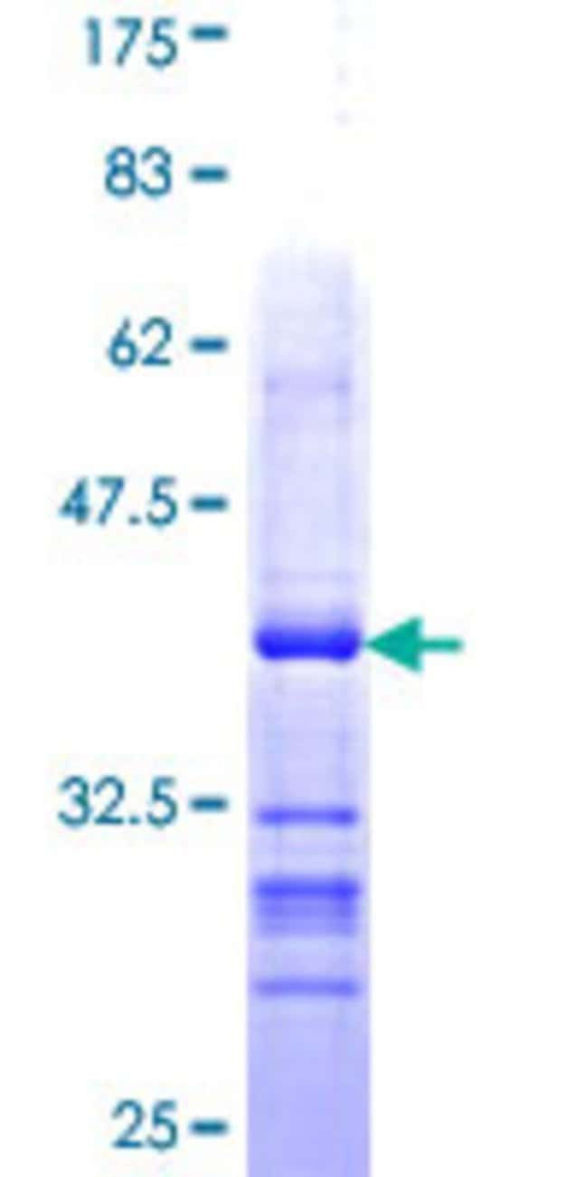 Abnova™Human LLGL1 Partial ORF (NP_004131, 911 a.a. - 1010 a.a.) Recombinant Protein with GST-tag at N-terminal 10μg Abnova™Human LLGL1 Partial ORF (NP_004131, 911 a.a. - 1010 a.a.) Recombinant Protein with GST-tag at N-terminal