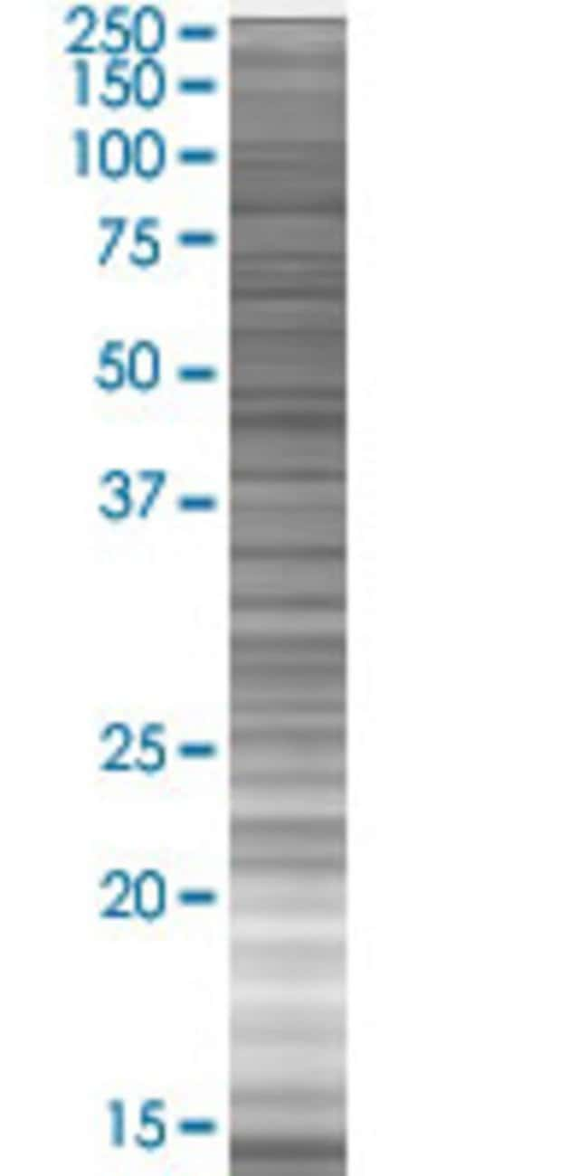 Abnova LMNA 293T Cell Transient Overexpression Lysate (Denatured) 100µL:Life