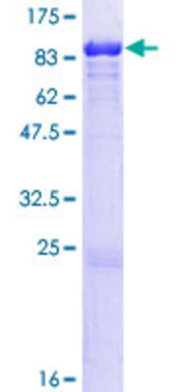 Abnova™Human LMNB1 Full-length ORF (AAH12295.1, 1 a.a. - 586 a.a.) Recombinant Protein with GST-tag at N-terminal 10μg Abnova™Human LMNB1 Full-length ORF (AAH12295.1, 1 a.a. - 586 a.a.) Recombinant Protein with GST-tag at N-terminal