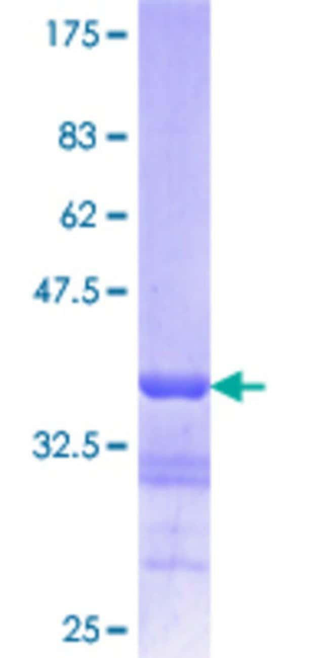 Abnova™Human LMNB1 Partial ORF (NP_005564.1, 107 a.a. - 186 a.a.) Recombinant Protein with GST-tag at N-terminal 10μg Abnova™Human LMNB1 Partial ORF (NP_005564.1, 107 a.a. - 186 a.a.) Recombinant Protein with GST-tag at N-terminal