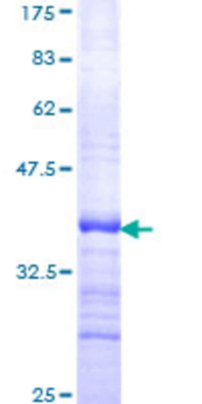 Abnova Human LMO1 Partial ORF (NP_002306, 1 a.a. - 90 a.a.) Recombinant