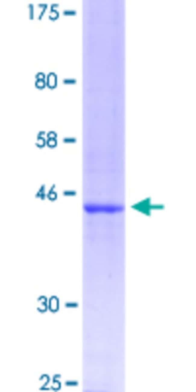 Abnova Human LMO1 Partial ORF (NP_002306.1, 15 a.a. - 156 a.a.) Recombinant