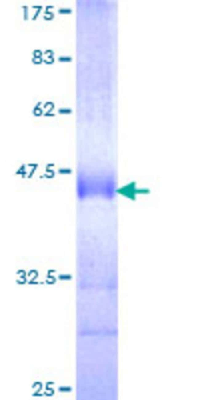 Abnova Human LMO7 Partial ORF (NP_005349, 453 a.a. - 540 a.a.) Recombinant