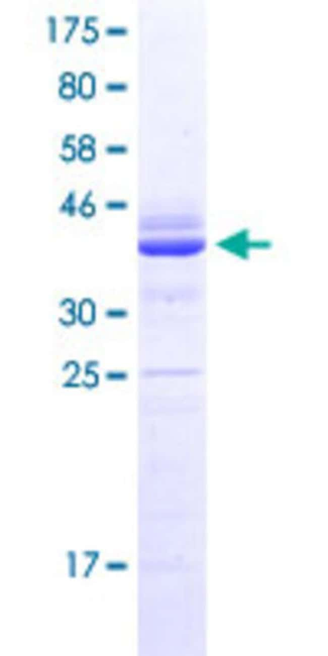 Abnova™ Human LRCH4 Partial ORF (NP_002310.2, 274 a.a. - 379 a.a.) Recombinant Protein with GST-tag at N-terminal 25μg Abnova™ Human LRCH4 Partial ORF (NP_002310.2, 274 a.a. - 379 a.a.) Recombinant Protein with GST-tag at N-terminal