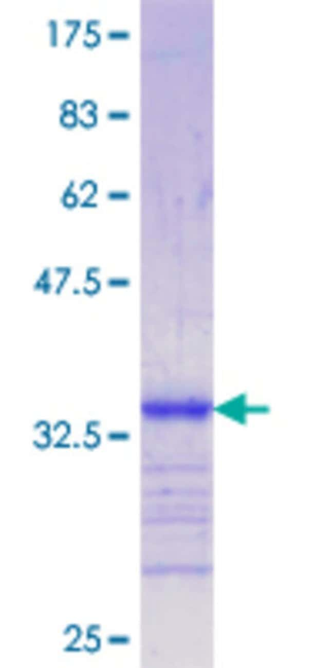 Abnova™Human LRP5 Partial ORF (NP_002326.1, 41 a.a. - 130 a.a.) Recombinant Protein with GST-tag at N-terminal 10μg Abnova™Human LRP5 Partial ORF (NP_002326.1, 41 a.a. - 130 a.a.) Recombinant Protein with GST-tag at N-terminal