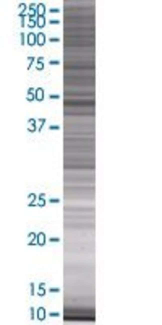 Abnova LSP1 293T Cell Transient Overexpression Lysate (Denatured) 100µL:Life