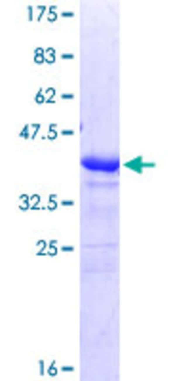 Abnova™Human TACSTD2 Partial ORF (NP_002344, 31 a.a. - 140 a.a.) Recombinant Protein with GST-tag at N-terminal 25μg Abnova™Human TACSTD2 Partial ORF (NP_002344, 31 a.a. - 140 a.a.) Recombinant Protein with GST-tag at N-terminal