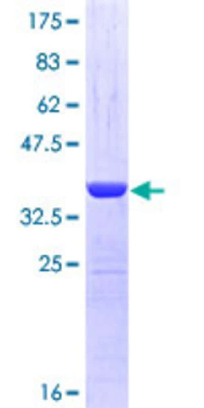 Abnova™Human NBR1 Partial ORF (NP_005890, 2 a.a. - 96 a.a.) Recombinant Protein with GST-tag at N-terminal 25μg Abnova™Human NBR1 Partial ORF (NP_005890, 2 a.a. - 96 a.a.) Recombinant Protein with GST-tag at N-terminal