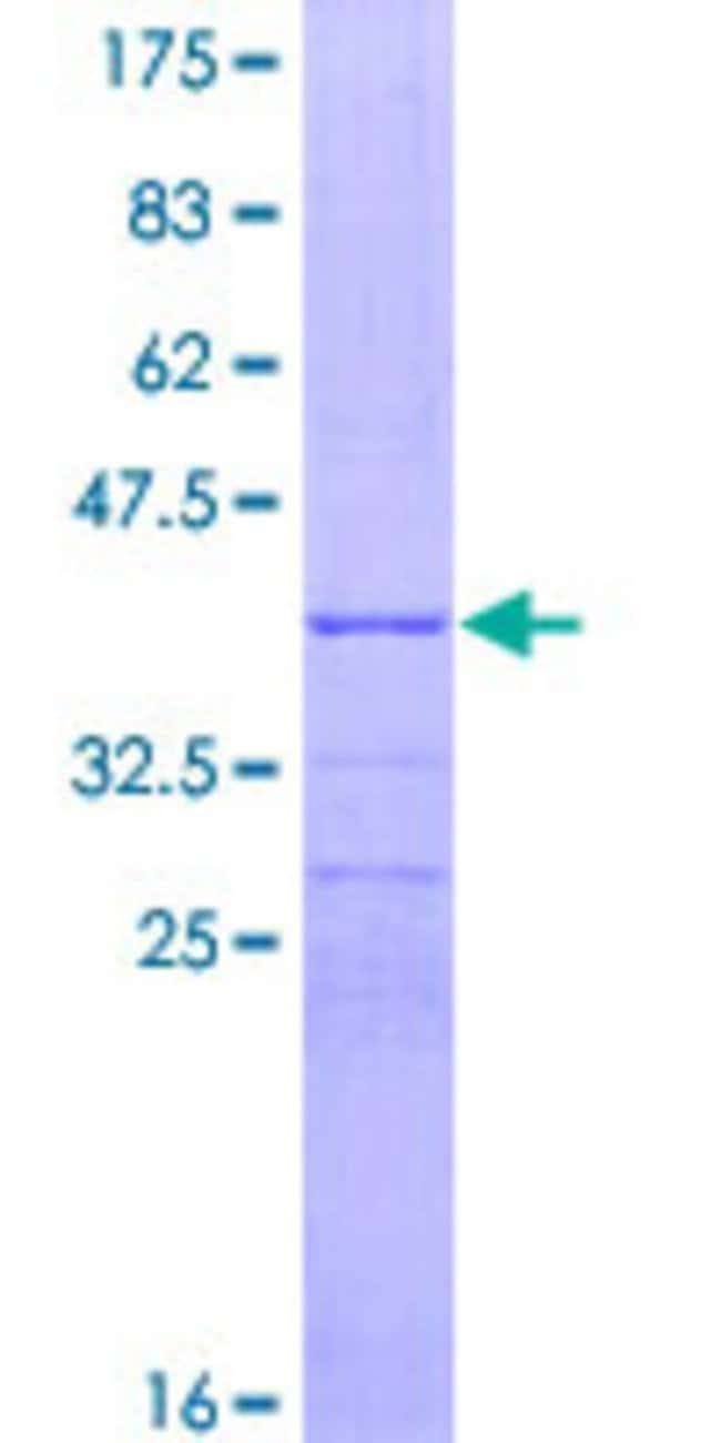 Abnova™Human MAB21L1 Partial ORF (NP_005575, 250 a.a. - 358 a.a.) Recombinant Protein with GST-tag at N-terminal 10μg Abnova™Human MAB21L1 Partial ORF (NP_005575, 250 a.a. - 358 a.a.) Recombinant Protein with GST-tag at N-terminal