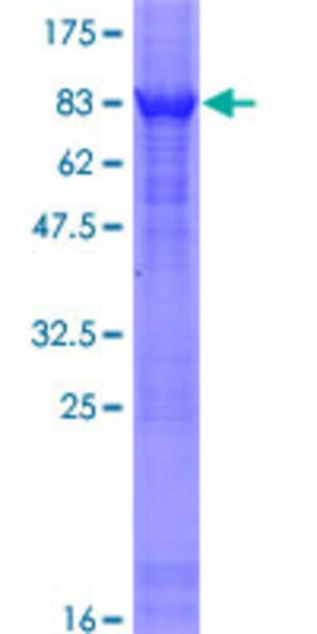 Abnova™Human MXD1 Full-length ORF (NP_002348.1, 1 a.a. - 221 a.a.) Recombinant Protein with GST-tag at N-terminal 10μg Abnova™Human MXD1 Full-length ORF (NP_002348.1, 1 a.a. - 221 a.a.) Recombinant Protein with GST-tag at N-terminal