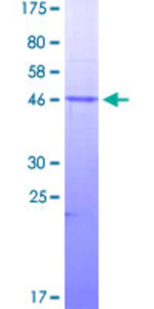 Abnova™Human SMAD3 Partial ORF (NP_005893, 147 a.a. - 270 a.a.) Recombinant Protein with GST-tag at N-terminal 10μg Abnova™Human SMAD3 Partial ORF (NP_005893, 147 a.a. - 270 a.a.) Recombinant Protein with GST-tag at N-terminal