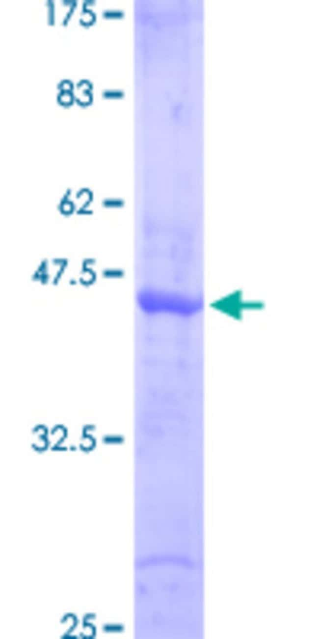 Abnova™Human SMAD6 Partial ORF (NP_005576, 285 a.a. - 384 a.a.) Recombinant Protein with GST-tag at N-terminal 10μg Abnova™Human SMAD6 Partial ORF (NP_005576, 285 a.a. - 384 a.a.) Recombinant Protein with GST-tag at N-terminal