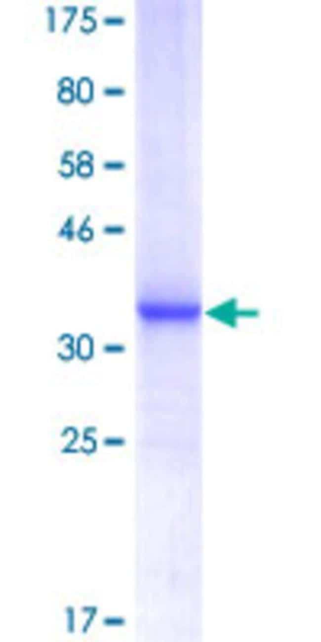 Abnova™Human MAGEA4 Partial ORF (NP_002353, 98 a.a. - 171 a.a.) Recombinant Protein with GST-tag at N-terminal 10μg Abnova™Human MAGEA4 Partial ORF (NP_002353, 98 a.a. - 171 a.a.) Recombinant Protein with GST-tag at N-terminal