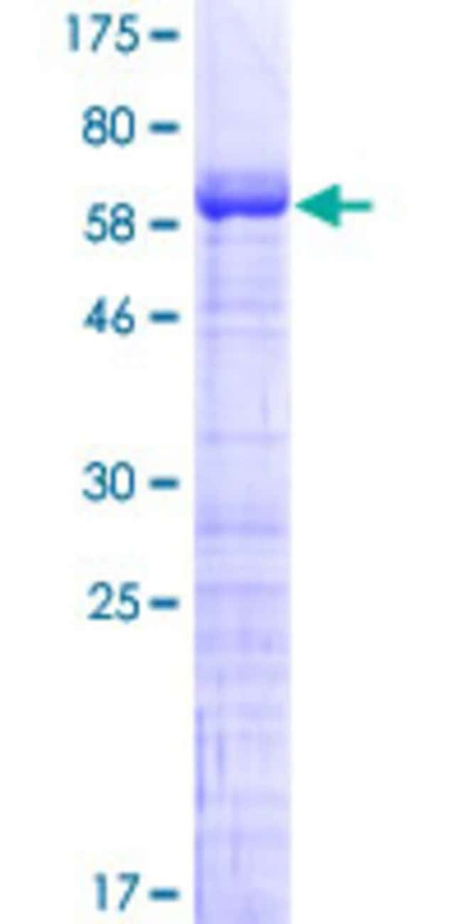 Abnova™Human MAGEB2 Full-length ORF (NP_002355.1, 1 a.a. - 319 a.a.) Recombinant Protein with GST-tag at N-terminal 10μg Abnova™Human MAGEB2 Full-length ORF (NP_002355.1, 1 a.a. - 319 a.a.) Recombinant Protein with GST-tag at N-terminal