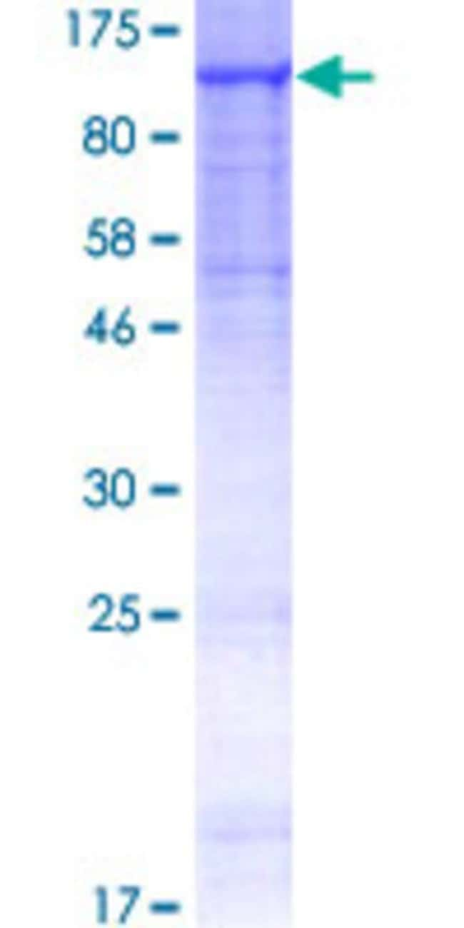 Abnova™Human MANBA Full-length ORF (AAH15743.1, 1 a.a. - 879 a.a.) Recombinant Protein with GST-tag at N-terminal 10μg Abnova™Human MANBA Full-length ORF (AAH15743.1, 1 a.a. - 879 a.a.) Recombinant Protein with GST-tag at N-terminal