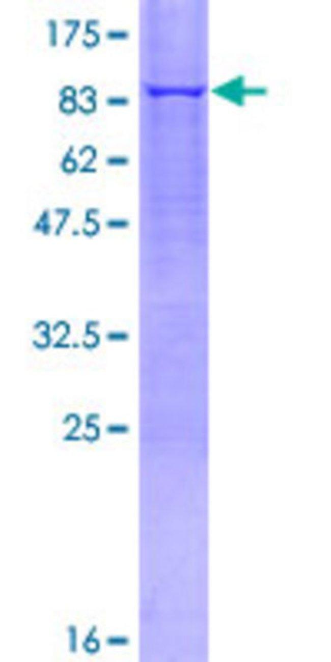 Abnova Human MAOA Full-length ORF (NP_000231.1, 1 a.a. - 527 a.a.) Recombinant