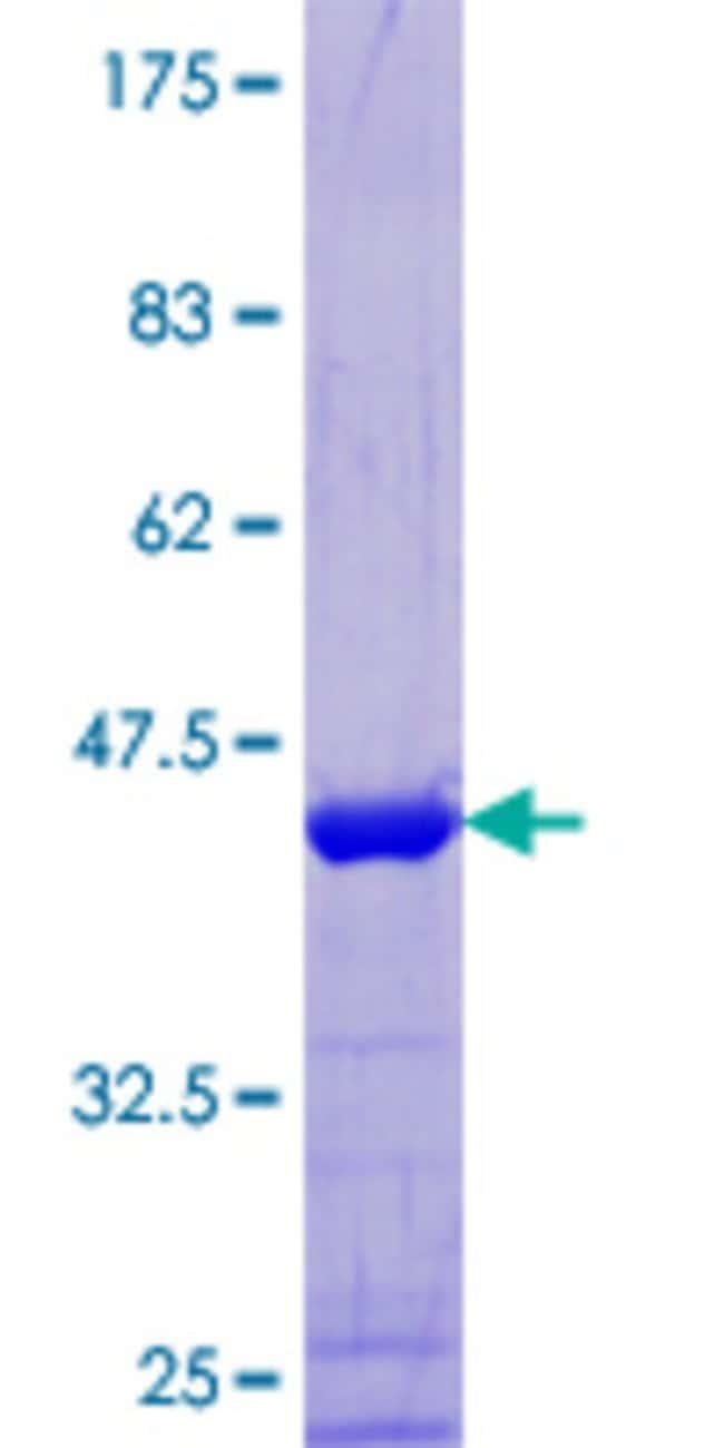 Abnova Human MAP4 Full-length ORF (NP_112147.2, 1 a.a. - 99 a.a.) Recombinant