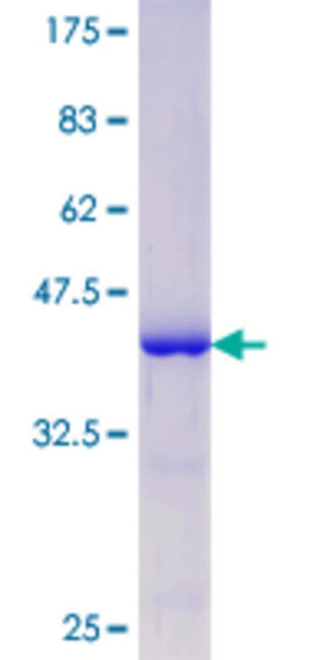 Abnova™Human MAPT Partial ORF (NP_058519.2, 167 a.a. - 266 a.a.) Recombinant Protein with GST-tag at N-terminal 25μg Abnova™Human MAPT Partial ORF (NP_058519.2, 167 a.a. - 266 a.a.) Recombinant Protein with GST-tag at N-terminal