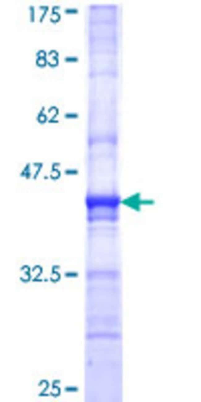 Abnova Human MAT1A Partial ORF (NP_000420, 1 a.a. - 92 a.a.) Recombinant