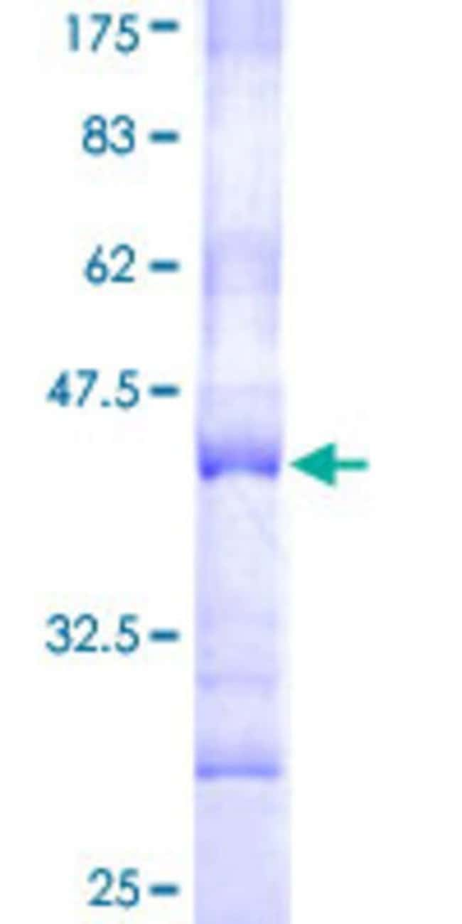 Abnova™Human MATK Partial ORF (AAH03109, 1 a.a. - 100 a.a.) Recombinant Protein with GST-tag at N-terminal 10μg Abnova™Human MATK Partial ORF (AAH03109, 1 a.a. - 100 a.a.) Recombinant Protein with GST-tag at N-terminal
