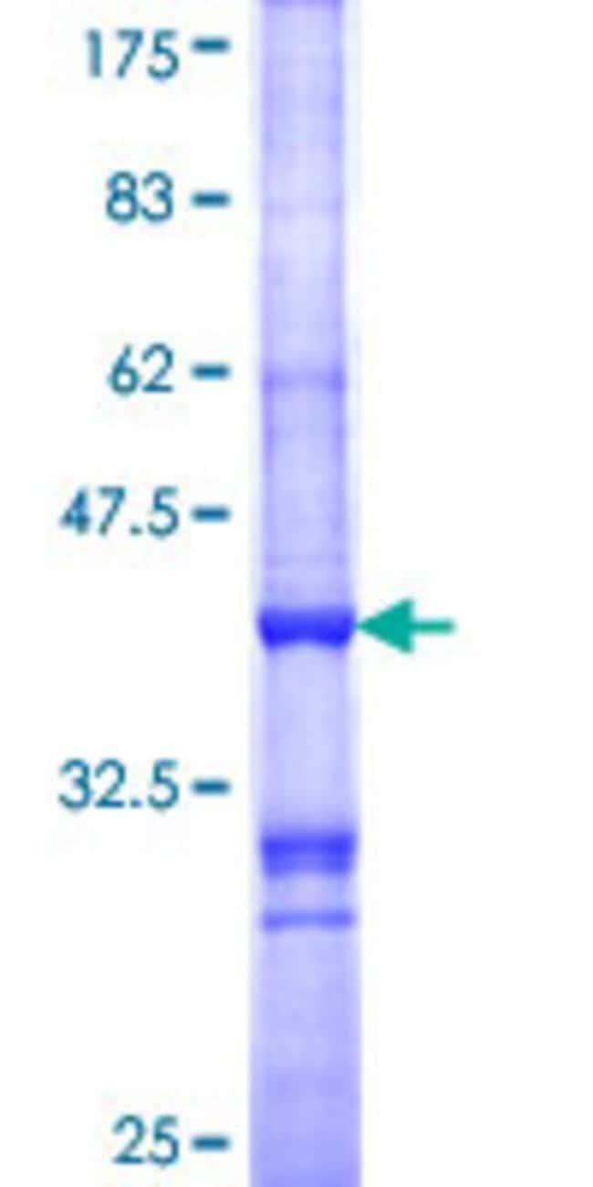 Abnova™Human MC1R Partial ORF (AAH07856, 1 a.a. - 100 a.a.) Recombinant Protein with GST-tag at N-terminal 25μg Abnova™Human MC1R Partial ORF (AAH07856, 1 a.a. - 100 a.a.) Recombinant Protein with GST-tag at N-terminal