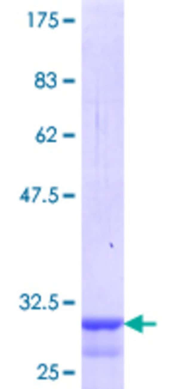 Abnova Human MC4R Partial ORF (NP_005903.1, 1 a.a. - 43 a.a.) Recombinant
