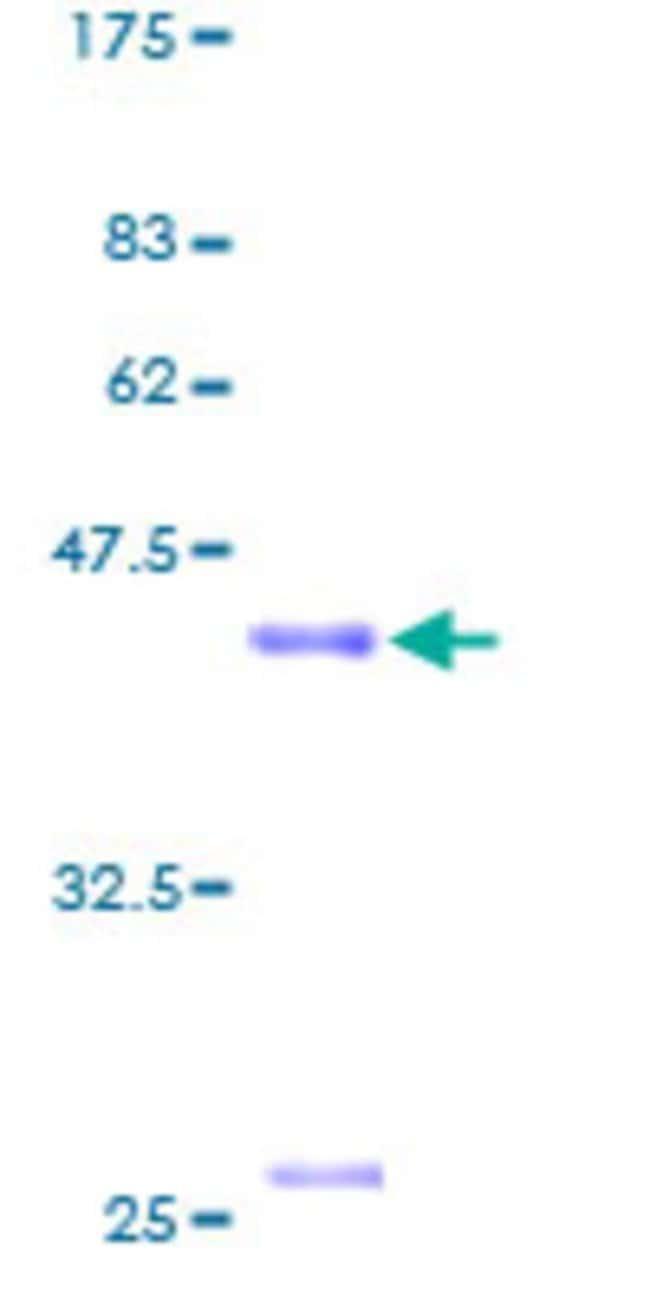 Abnova Human MCSP Full-length ORF (AAH14593, 1 a.a. - 116 a.a.) Recombinant