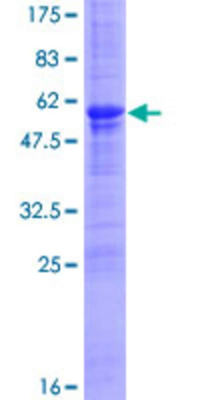 Abnova™ Human MDFI Full-length ORF (NP_005577.1, 1 a.a. - 246 a.a.) Recombinant Protein with GST-tag at N-terminal 10μg Abnova™ Human MDFI Full-length ORF (NP_005577.1, 1 a.a. - 246 a.a.) Recombinant Protein with GST-tag at N-terminal