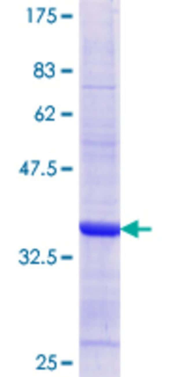 Abnova Human MDH1 Partial ORF (AAH01484.1, 101 a.a. - 193 a.a.) Recombinant