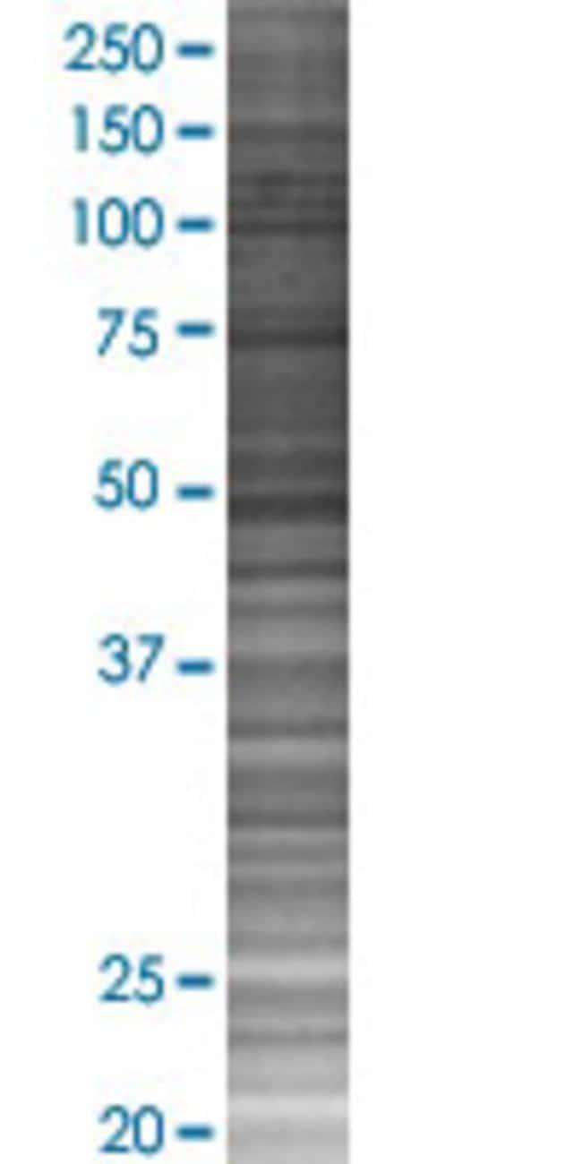 AbnovaMDM2 293T Cell Transient Overexpression Lysate (Denatured) 100μL:Protein