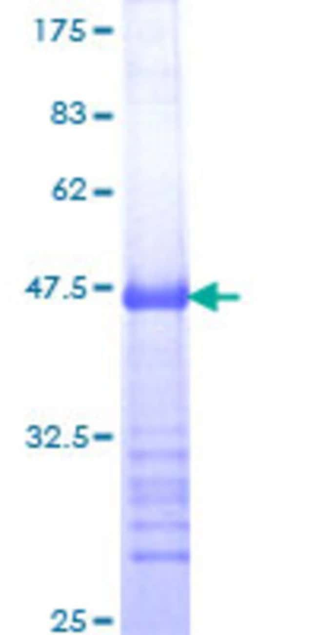 Abnova™Human MDM4 Partial ORF (NP_002384, 381 a.a. - 490 a.a.) Recombinant Protein with GST-tag at N-terminal 10μg Abnova™Human MDM4 Partial ORF (NP_002384, 381 a.a. - 490 a.a.) Recombinant Protein with GST-tag at N-terminal