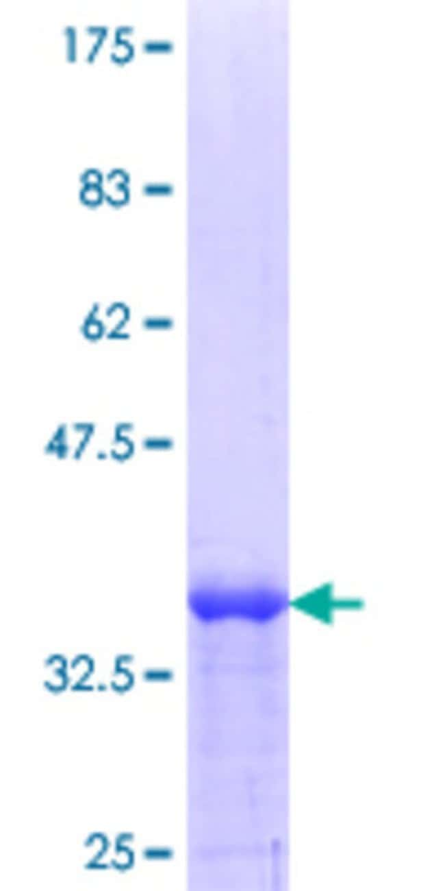 Abnova™Human MEA1 Partial ORF (NP_055438.1, 121 a.a. - 185 a.a.) Recombinant Protein with GST-tag at N-terminal 25μg Abnova™Human MEA1 Partial ORF (NP_055438.1, 121 a.a. - 185 a.a.) Recombinant Protein with GST-tag at N-terminal