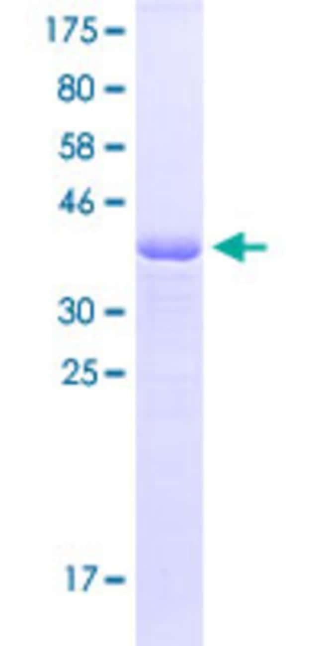 Abnova Human MEF2A Partial ORF (AAH13437.1, 71 a.a. - 170 a.a.) Recombinant