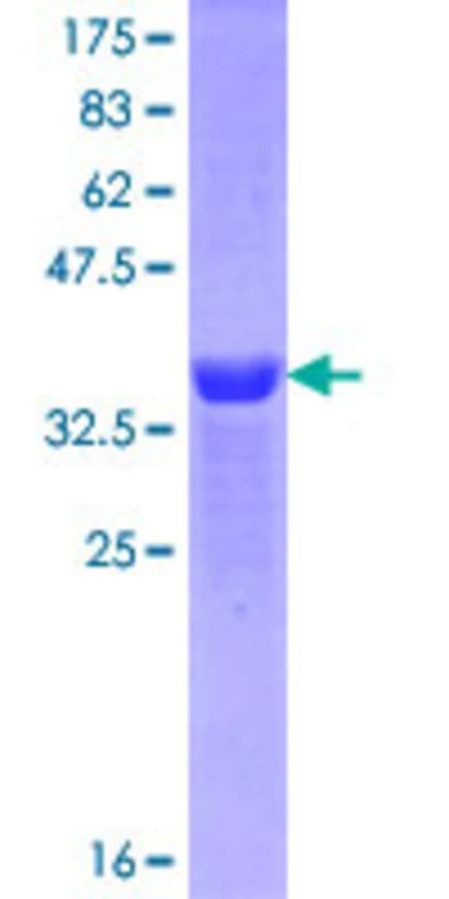 Abnova™Human MEIS1 Partial ORF (NP_002389, 1 a.a. - 90 a.a.) Recombinant Protein with GST-tag at N-terminal 25μg Abnova™Human MEIS1 Partial ORF (NP_002389, 1 a.a. - 90 a.a.) Recombinant Protein with GST-tag at N-terminal