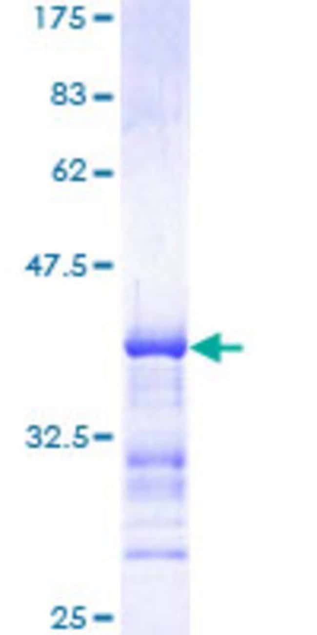 Abnova™Human MAP3K4 Partial ORF (NP_005913, 1201 a.a. - 1300 a.a.) Recombinant Protein with GST-tag at N-terminal 10μg Abnova™Human MAP3K4 Partial ORF (NP_005913, 1201 a.a. - 1300 a.a.) Recombinant Protein with GST-tag at N-terminal