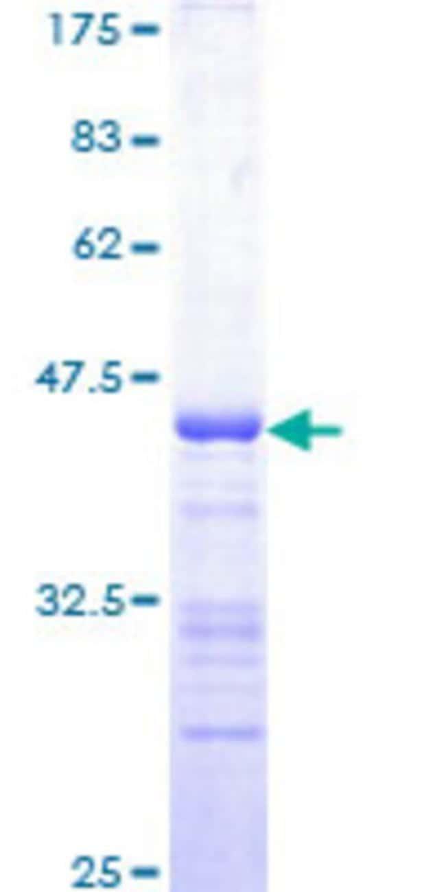 Abnova Human MAP3K5 Partial ORF (AAH54503, 1231 a.a. - 1374 a.a.) Recombinant