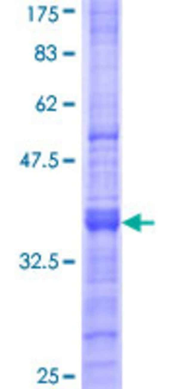 Abnova™Human MFAP4 Partial ORF (NP_002395, 23 a.a. - 122 a.a.) Recombinant Protein with GST-tag at N-terminal 10μg Abnova™Human MFAP4 Partial ORF (NP_002395, 23 a.a. - 122 a.a.) Recombinant Protein with GST-tag at N-terminal