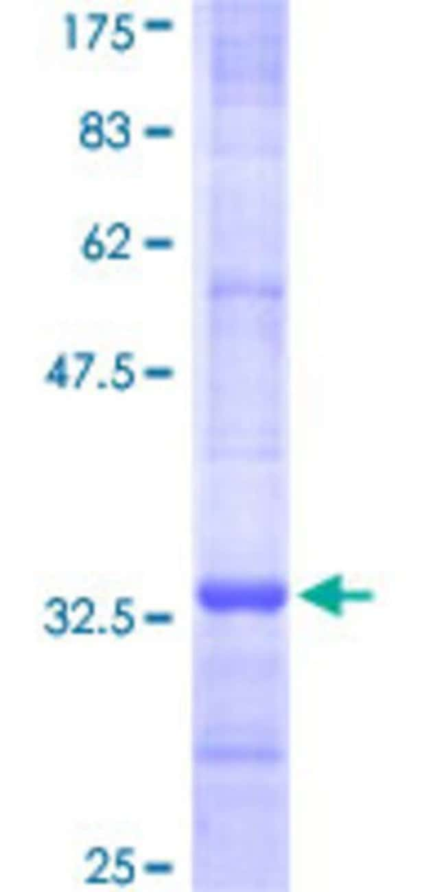 Abnova Human MGST3 Partial ORF (NP_004519, 28 a.a. - 84 a.a.) Recombinant
